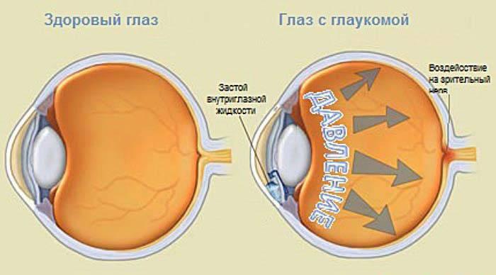 glaukoma-1